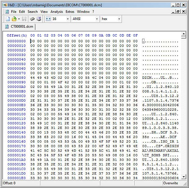 DICOM File displayed in Hexeditor