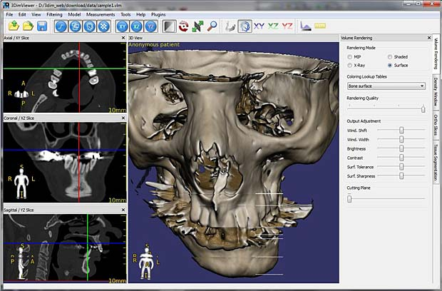 Dicom Viewer Mac Free Download