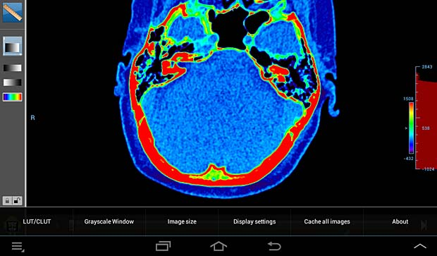 Droid DICOM viewer image panel with