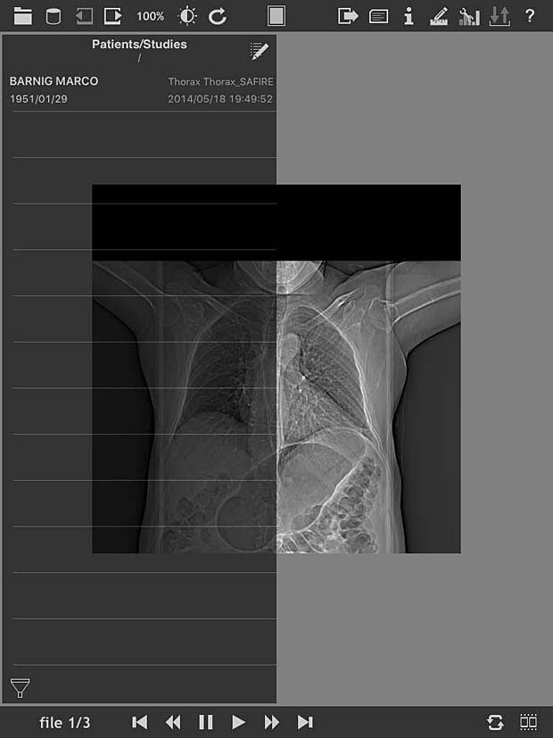 loDICOM Viewer image panel