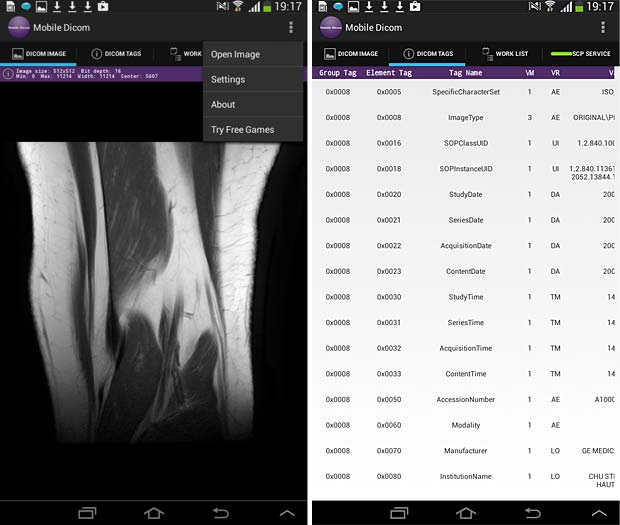 Mobile Dicom Viewer image and metadata panels